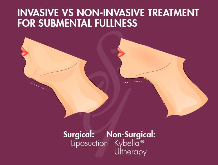 Invasive vs non-invasive treatment for submental fullness