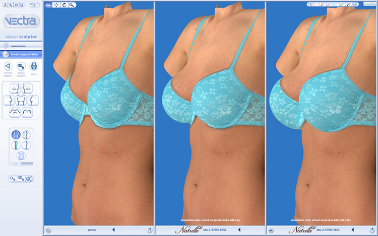 Vectra 3D imaging Breast Example