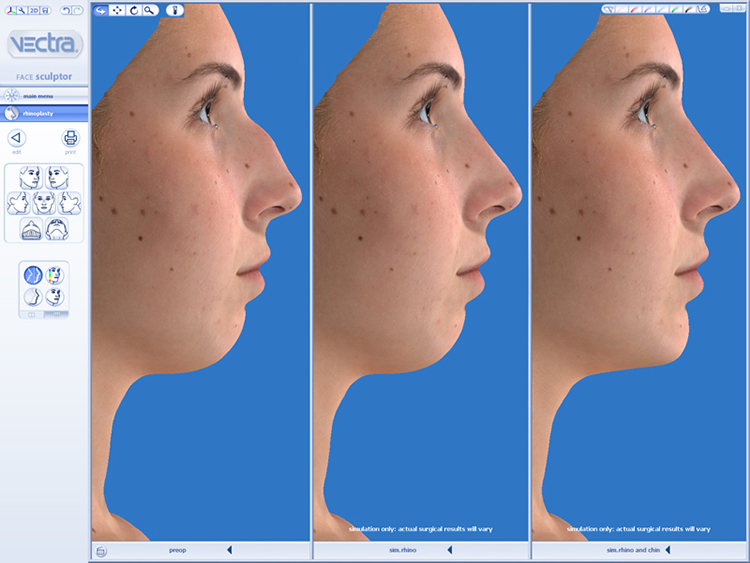 Vectra 3D Imaging Nose Example
